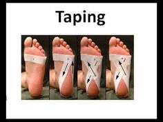 Foot taping for plantar fasciitis. Wrap strip around foot at level of ball of foot. strip around heel starting just below pinky toe around sides of heel back up to first strip. strip around heel starting just below pinky toe like step 2 but Facitis Plantar, Plantar Fasciitis Taping, Plantar Fasciitis Treatment, Plantar Fasciitis Symptoms, Heel Pain, Foot Pain, Health Tips, Health And Wellness, Body Fitness