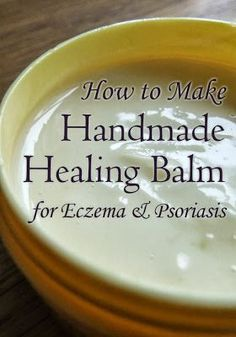 Handmade Healing Balm for Eczema and Psoriasis #eczemacream #eczemalotion #psoriasiscream #neemoil #dermatitis