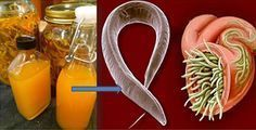 Antica ricetta: un potente antibiotico naturale   Rimedio Naturale