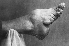 ancient chinese foot binding history
