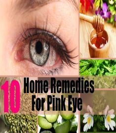 Natural Home Remedies for Pink Eye | Health Villas