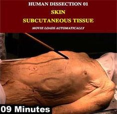 Human cadaver dissection videos from University of Wisconsin Medical College:    http://www.lawrencegaltman.com/Naugbio/CADAVER/GALLERY.htm