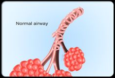An animated illustration shows the muscle constriction of the airways known as bronchospasm.