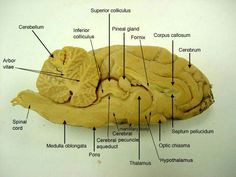 edu anatomy images Nervous_label sheep_brain_s_s_label. Skull Anatomy, Brain Anatomy, Medical Anatomy, Anatomy Study, Basic Anatomy And Physiology, Nervous System Anatomy, Brain Diagram, Corpus Callosum, Anatomy Images