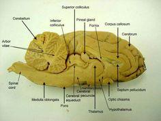 edu anatomy images Nervous_label sheep_brain_s_s_label. Skull Anatomy, Brain Anatomy, Medical Anatomy, Anatomy Study, Nervous System Anatomy, Basic Anatomy And Physiology, Brain Diagram, Corpus Callosum, Anatomy Images