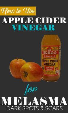 How to Use Apple Cider Vinegar for Melasma - 7 Methods (Included) - Skin Disease Remedies Apple Cider Vinegar Cellulite, Vinegar For Acne, Apple Cider Vinegar Facial, Skin Care Remedies, Natural Remedies, Health Remedies, Eczema Remedies, Vinegar With The Mother, Apple Cider Benefits