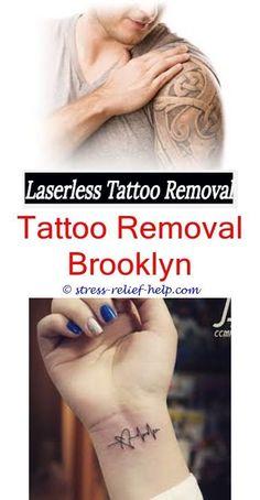 Laser Tattoo Removal in Idaho Falls | Makeup hacks | Pinterest ...