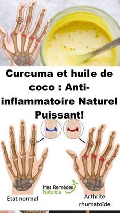 Curcuma et huile de coco : Anti-inflammatoire Naturel Puissant! Nutrition, Healthy Family Meals, Fitness Magazine, Natural Cures, Healthy Tips, Health And Beauty, Feel Good, The Cure, Health Fitness