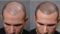 Best Hair Transplant Consultant | My blog about choosing the best Scalp Micropigmentation clinic
