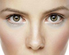 Penyebab Dan Cara Alami Menghilangkan Kantung Mata | Konsorsium Komunitas Trader