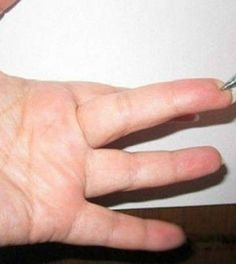 A Special Spot on the Finger It Immediately Lowers Blood Pressure and Eliminates Every Pain! First Aid For Kids, Health Tips, Health Care, Lower Blood Pressure, Yoga, Kuroko, Back Pain, Home Remedies, Natural Remedies