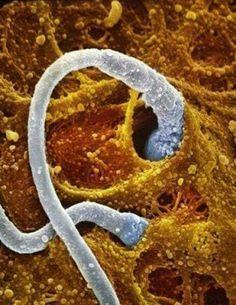 10 Ideas De Embrion Embrion Microscopio Electronico De Barrido Fotografía Microscópica