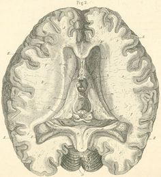 Inner surface of the brain, seen from above, exposing both lateral ventricles and the third ventricle. The corpus callosum, septum pellucidum and fornix seen in front of 3. Ventricle of the foramen of Monro is cut across and passes posteriorly.