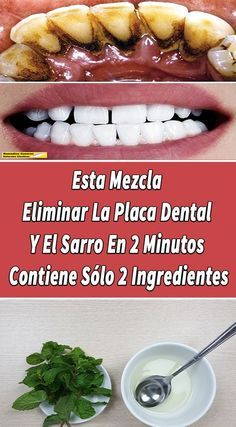 Este Remedio De 2 Ingredientes Puede Ayudarle A Eliminar La Placa Dental Y El Sarro Naturalmente Comoeli Blanqueamiento Dental Casero Placas Dentales Dental