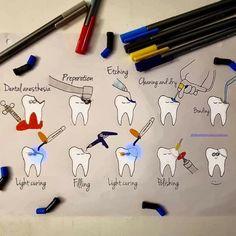 Adamant Dental Surgery Food Recipes For - Cosas Que Hacer Para Una Boca Sana Dental Assistant Study, Dental Hygiene Student, Dental Hygienist, Dental Care, Dental Surgery, Dental Implants, Nose Surgery, Dental Videos, Dental Anatomy