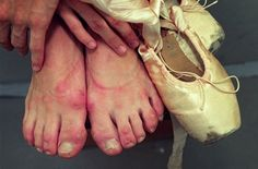 At least I no longer have ugly dancer feet. Unfortunately, still have a lot of foot pain/issues.