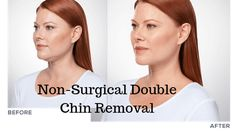 Are you suffering from double chin fat? It is basically an extra layer of fat under the chin area. The jowls may be excess fat, excess skin or sagging skin under the chin. Double Chin Removal, Lipoma Removal, Sagging Skin, Wands, Fat, Walls, Fairy Wands, Sticks