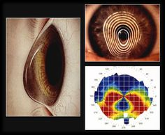 College of Optometry - Continuing Education