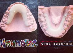 #Rose #rosa #Xmas #christmas #weihnachten #white #weekend #pink  We recommend an orthodontic screening at age 7  Wir empfehlen: Mit 7 Jahren zum Kieferorthopäden!  #brace of the #day  #zahnspange  #orthodontics #orthodontist #kieferorthopädie #kieferorthopäde #kfobabai #kinder #hannover #ortodoncia #ortodontia #dental #dentistry #dentist #dentista #dentalhealth #dentallife #dentalassistant #dentalart  #quote