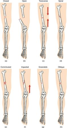 Radiology Student, Medical Student, Nursing Student Tips, Radiology Schools, Radiology Imaging, Medical School, Medical Facts, Medical Science, Types Of Fractures