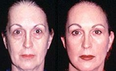 Facelifts Without Surgery Elements Using Yoga Face Aerobics And Manipulation Treatments To Appear Years More Youthful Face Exercises For Men, Do Facial Exercises Work, Facelift Without Surgery, Face Transformation, Natural Face Lift, Facial Yoga, Facial Rejuvenation, Face Wrinkles, Beauty Cream