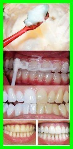 Clareamento Dental Caseiro Com Bicarbonato De Sodio Em 2020