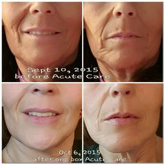 Rodan + Fields works! Contact me to find out more.