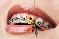 Заключение зубов в брекеты