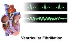 Do you know the signs of Ventricular Fibrillation? Find out what to look for here!