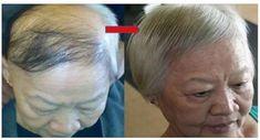 Mettez quelques gouttes de ce puissant sérum sur votre cuir chevelu et attendez de voir tous vos cheveux perdus repousseront encore une fois … Impressionnant !