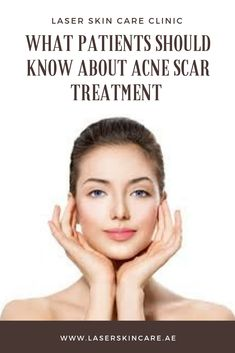 Acne is a standout amongst the most widely recognized skin worries that influence countless around the world. Hardly any individuals may dis. Scar Treatment, Skin Care Treatments, Laser Skin Care, Skin Care Clinic, Laser Hair Removal, Acne Scars, Whitening, Therapy, Rest