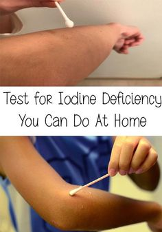 odine deficiency is part of the top 3 most common deficits, along with magnesium and vitamin D. Here is a Test for Iodine Deficiency You Can Do At Home! Thyroid Test, Thyroid Issues, Thyroid Disease, Iodine Deficiency Symptoms, Iodine Benefits, Adrenal Health, Adrenal Fatigue, Health Diet