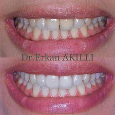 Yapılan tam seramik restorasyonlar ve diş beyazlatma ile daha estetik gülüşe sahip olabilirsiniz. #dental #implant #treatment #aesthetic #beauty #smiledesign #beforeafter #dentist #doctor #dentistry #cosmeticdentistry #natural #aesthetic by dr_ea Our General Dentistry Page: http://www.myimagedental.com/services/general-dentistry/ Google My Business: https://plus.google.com/ImageDentalStockton/about Our Yelp Page: http://www.yelp.com/biz/image-dental-stockton-3 Our Facebook Page…