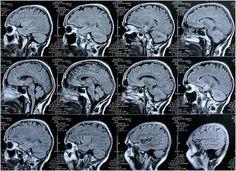 """Depressionen verändern die limbischen Regionen im Gehirn """"Das menschliche Gehirn reagiert auf eine Depression. Insbesondere in der Amygdala, im Striatum und in anderen limbischen Regionen treten typischerweise Hyperaktivitäten auf"""", berichtet Svenja Taubner vom Institut für Psychologie an der Universität Klagenfurt. Gemeinsam mit Forschern der der Universitäten Lübeck, Innsbruck, Heidelberg, Ulm, Bremen, Bochum und Delmenhorst arbeitete Taubner an einer Studie zu den Veränderungen im…"""