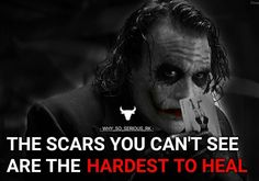 Scars...