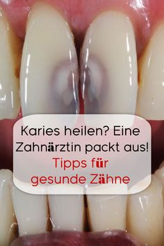 A dentist unpacks! Tips for healthy teeth Source by Savefox Related posts: Homemade toothpaste that can whiten teeth, repair tooth holes and gum disease Holiday Oral Care Devamı… Gum Health, Oral Health, Dental Health, Dental Care, Health Care, Cure Tooth Decay, What Causes Tooth Decay, Loose Tooth, Receding Gums