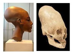 Bust of the elongated head of an Amarna Princess (Egypt) and elongated skull found in Peru. Elongated skulls have apparently been found all over the world and the explanation of skull binding for reasons of beauty seems unlikely. (Scan down to about half way down the linked page to read more).