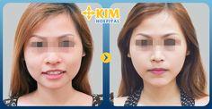 Nâng Mũi Đẹp Tại KimHospital: Làm thế nào để mũi nhỏ đi để có dáng mũi đẹp