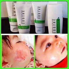 Rodan and Fields soothe regimen is gentle enough for babies but powerful for the toughest skin sensitivity issue you have!! 60 day empty bottle guarantee!! Give it a try!!