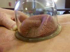 Scar tissue being released with Cupping Therapy