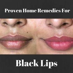 Get rid of those ugly black lips with these amazing home remedies.
