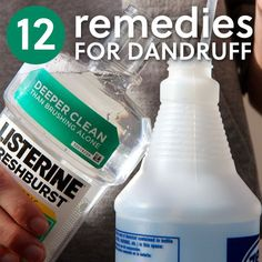 Homemade Dandruff Shampoo Mix 2 parts water with 1 part Listerine. After you shampoo, spray or pour the solution onto your scalp, massage in well, and let sit for 30 minutes before rinsing with water. Home Remedies For Dandruff, Hair Remedies, Herbal Remedies, Natural Remedies, Natural Treatments, Hair Treatments, Dandruff Solutions, Hair And Beauty, Hair Beauty