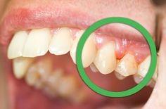 歯垢は放っておくと歯石になり、取りのぞくのがさらにむずかしくなります。どちらも私たちの歯のエナメル質を溶かしてゆき、やがて歯を失う結果を招いてしまいます。