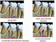 Four stages of gum disease