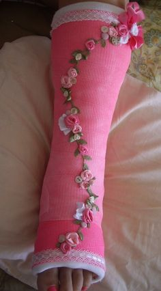 decorated cast - Google Search