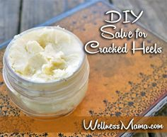 DIY Salve for Cracked Heels