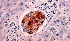 Worldwide cancer cases expected to soar by 70% over next 20 years - http://theconspiracytheorist.net/2014/02/04/news/worldwide-cancer-cases-expected-to-soar-by-70-over-next-20-years/