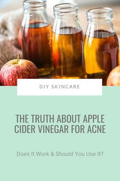 Is apple cider vinegar good for acne? Yes.Should you use it? No.Newsflash: just because something works, it doesn't mean you should use it. Click pin to find out more #diyskincare #applecidervinegar