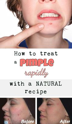 How to treat a pimple rapidly with a natural recipe - BeautyZone.info