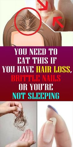 Healthy Man Women and refined men, in the event that you addressed YES to the inquiries above. read more click image -… in 2020 Baby Hair Loss, Oil For Hair Loss, Stop Hair Loss, Healthy Man, How To Stay Healthy, Healthy Life, Healthy Living, Brittle Nails, Organic Shampoo